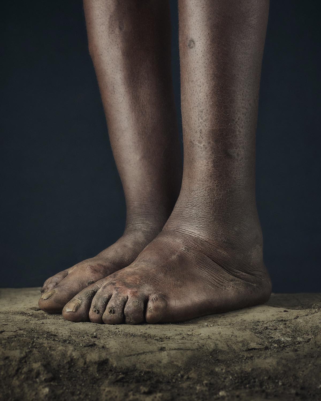 25_PODO_Feet_2000_MJP_LowRes.jpg