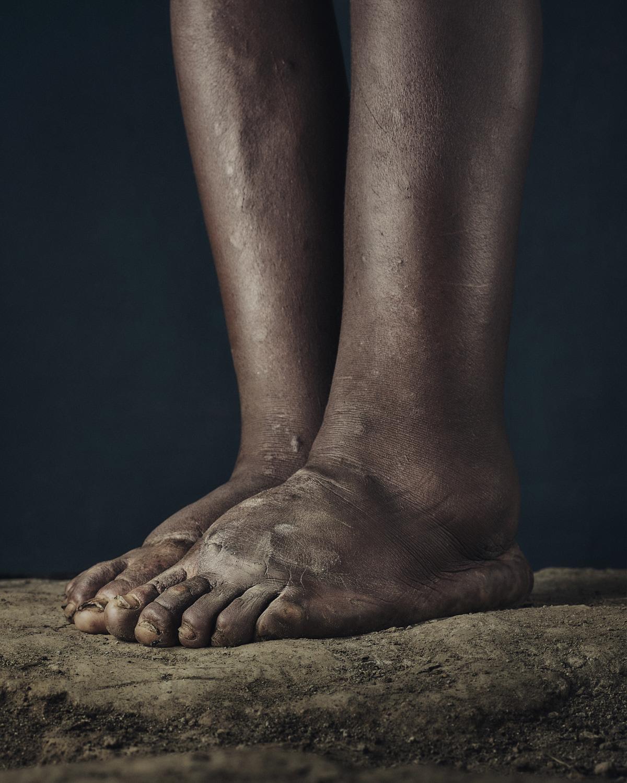 26_PODO_Feet_2000_MJP_LowRes.jpg