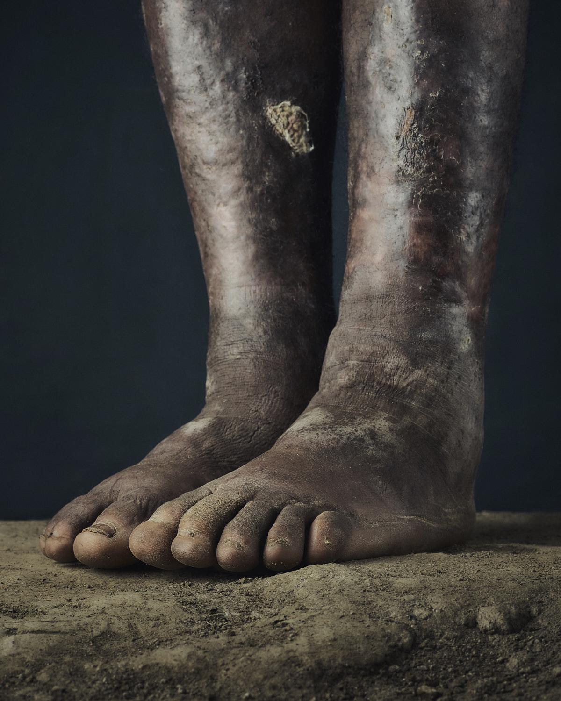 27_PODO_Feet_2000_MJP_LowRes.jpg