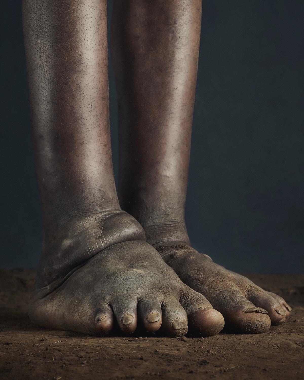 28_PODO_Feet_2000_MJP_LowRes.jpg