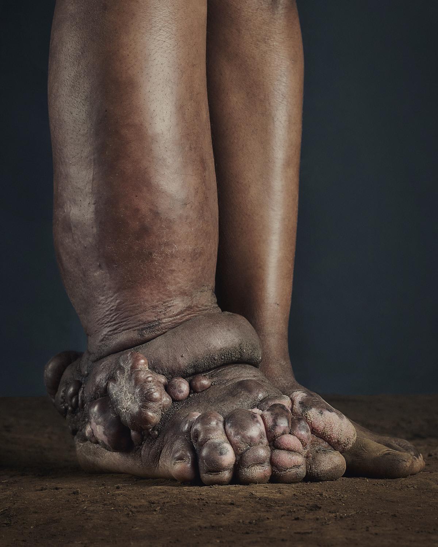 29_PODO_Feet_2000_MJP_LowRes.jpg
