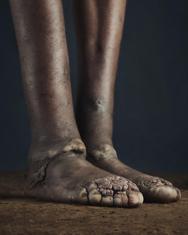 30_PODO_Feet_2000_MJP_LowRes.jpg