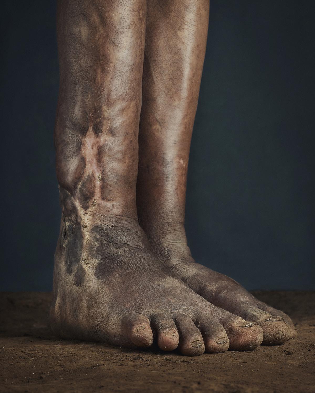 31_PODO_Feet_2000_MJP_LowRes.jpg