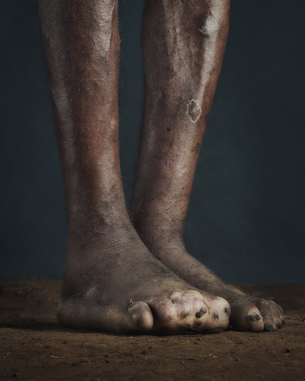 32_PODO_Feet_2000_MJP_LowRes.jpg