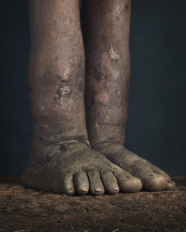 33_PODO_Feet_2000_MJP_LowRes.jpg