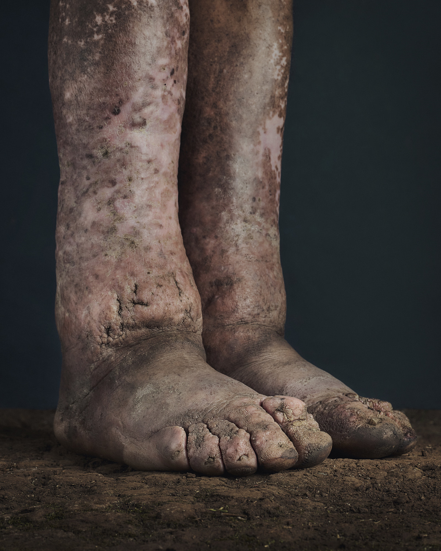 34_PODO_Feet_2000_MJP_LowRes.jpg
