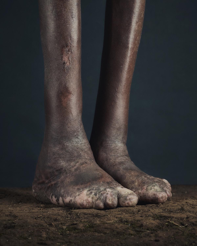 35_PODO_Feet_2000_MJP_LowRes.jpg