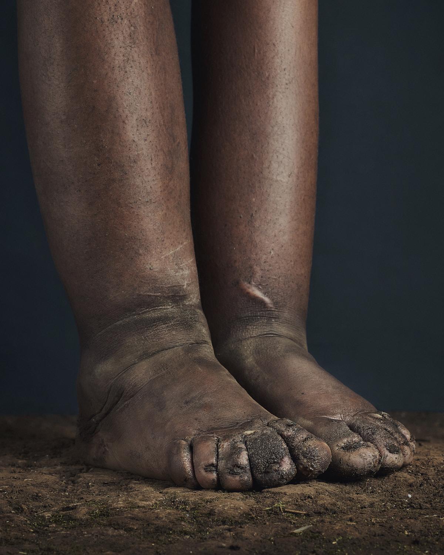 36_PODO_Feet_2000_MJP_LowRes.jpg