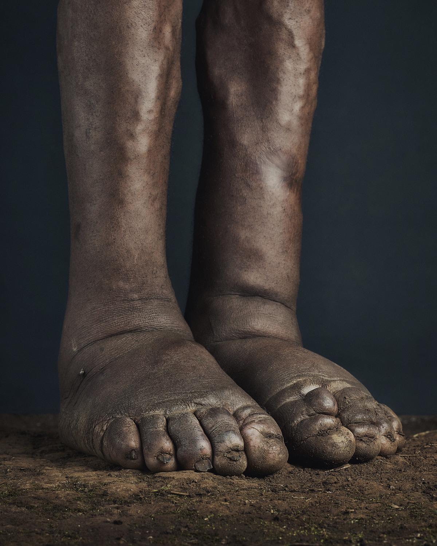 37_PODO_Feet_2000_MJP_LowRes.jpg