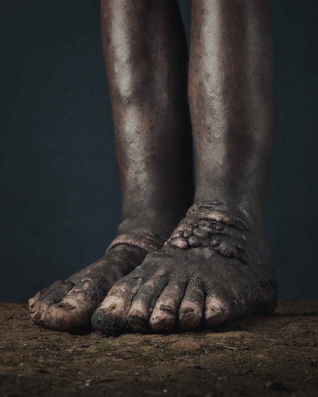 38_PODO_Feet_2000_MJP_LowRes.jpg