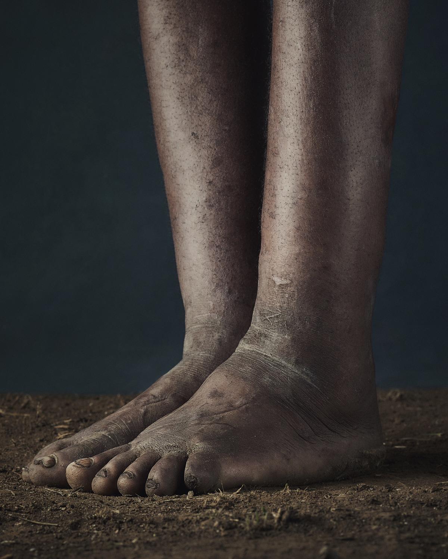 39_PODO_Feet_2000_MJP_LowRes.jpg