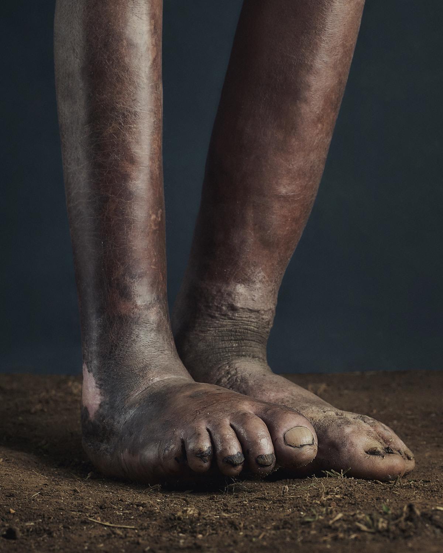 40_PODO_Feet_2000_MJP_LowRes.jpg