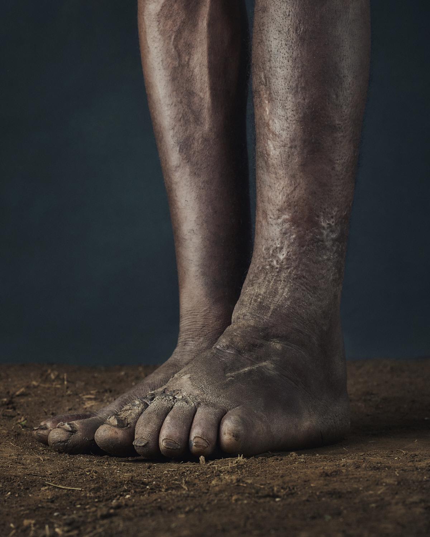 42_PODO_Feet_2000_MJP_LowRes.jpg