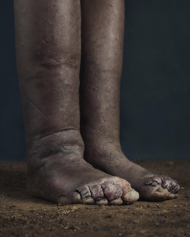 43_PODO_Feet_2000_MJP_LowRes.jpg