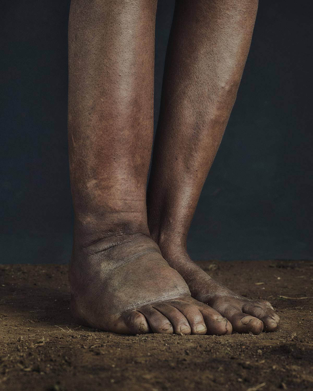 46_PODO_Feet_2000_MJP_LowRes.jpg