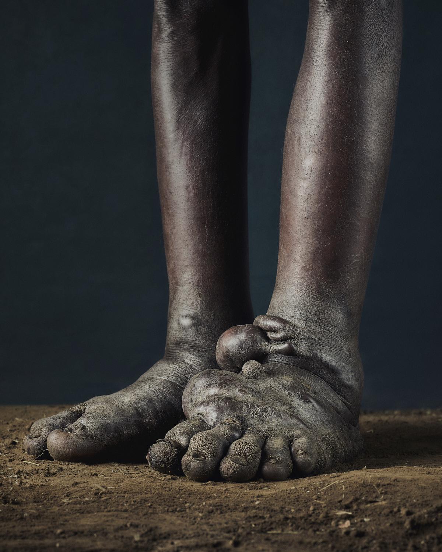 47_PODO_Feet_2000_MJP_LowRes.jpg