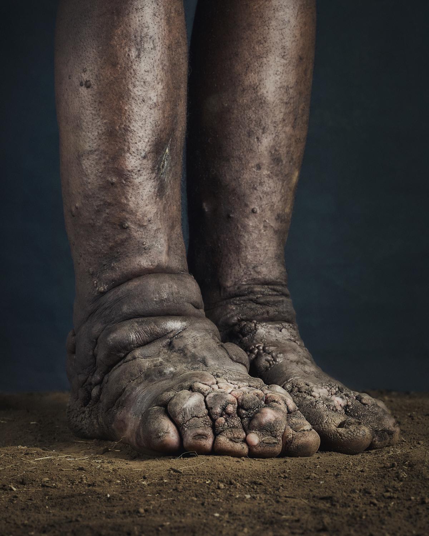 48_PODO_Feet_2000_MJP_LowRes.jpg