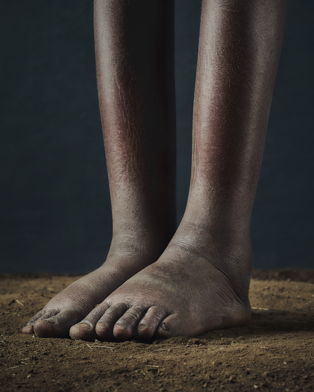 49_PODO_Feet_2000_MJP_LowRes.jpg