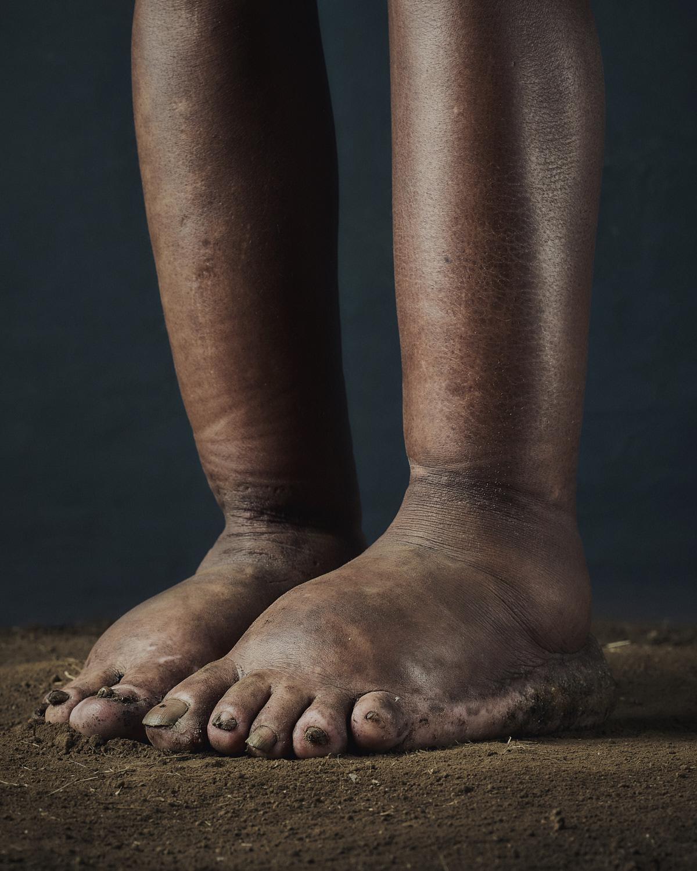 50_PODO_Feet_2000_MJP_LowRes.jpg