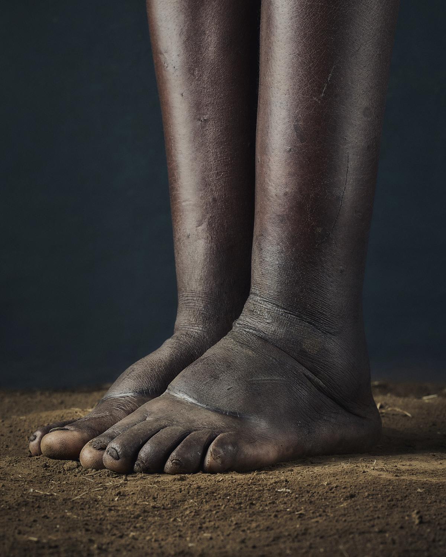 51_PODO_Feet_2000_MJP_LowRes.jpg