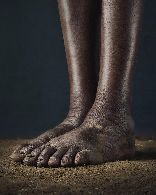 52_PODO_Feet_2000_MJP_LowRes.jpg