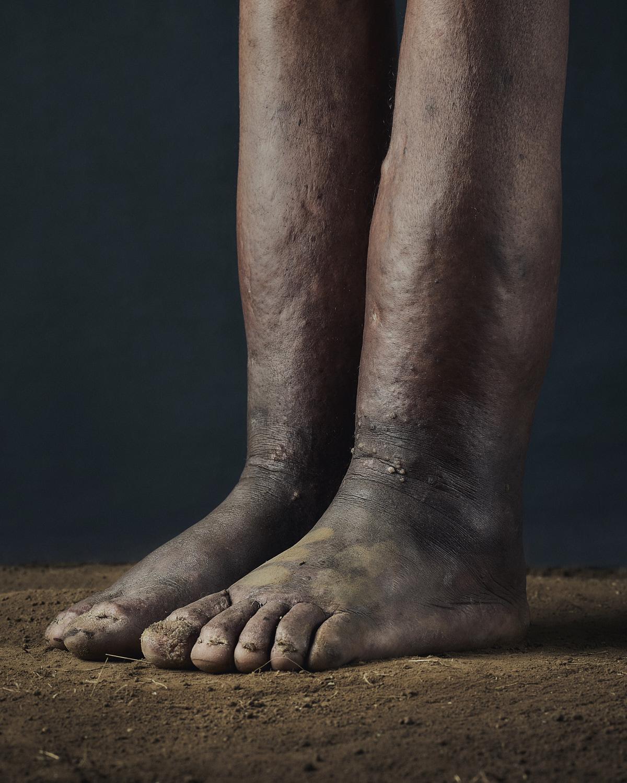 53_PODO_Feet_2000_MJP_LowRes.jpg