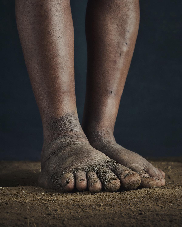 54_PODO_Feet_2000_MJP_LowRes.jpg