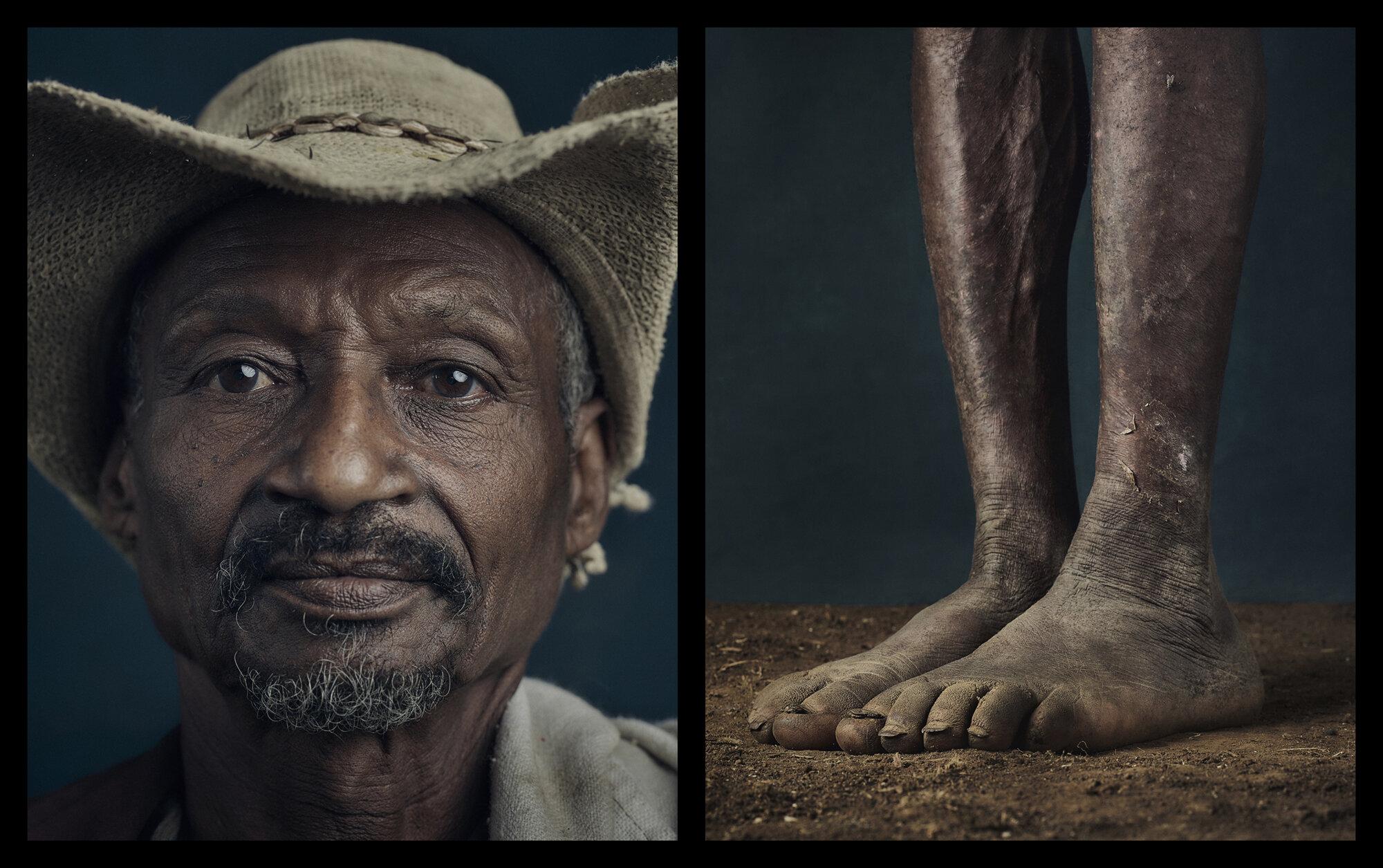podoconiosis ethiopia portrait