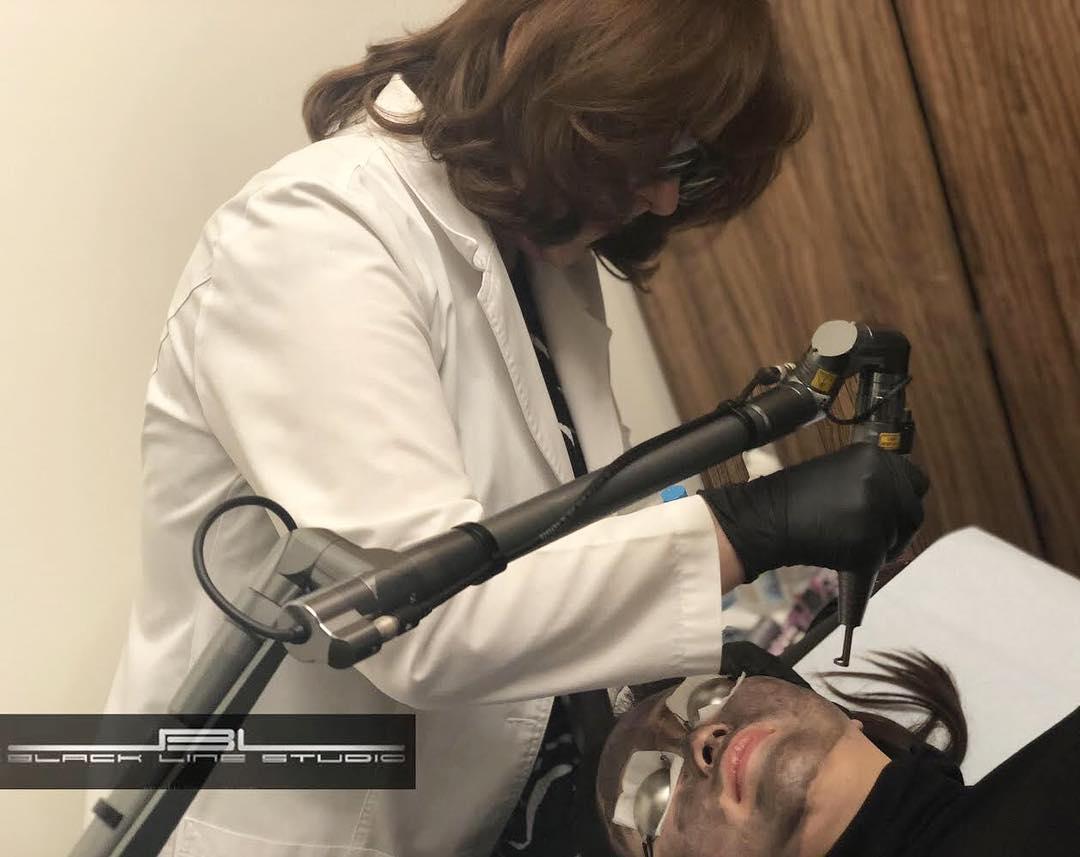 Carbon peel laser treatment