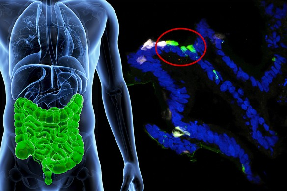 Human gastrointestinal cells from patients were engineered to express insulin (fluorescent green) in the lab. (Image by Columbia University Medical Center.)