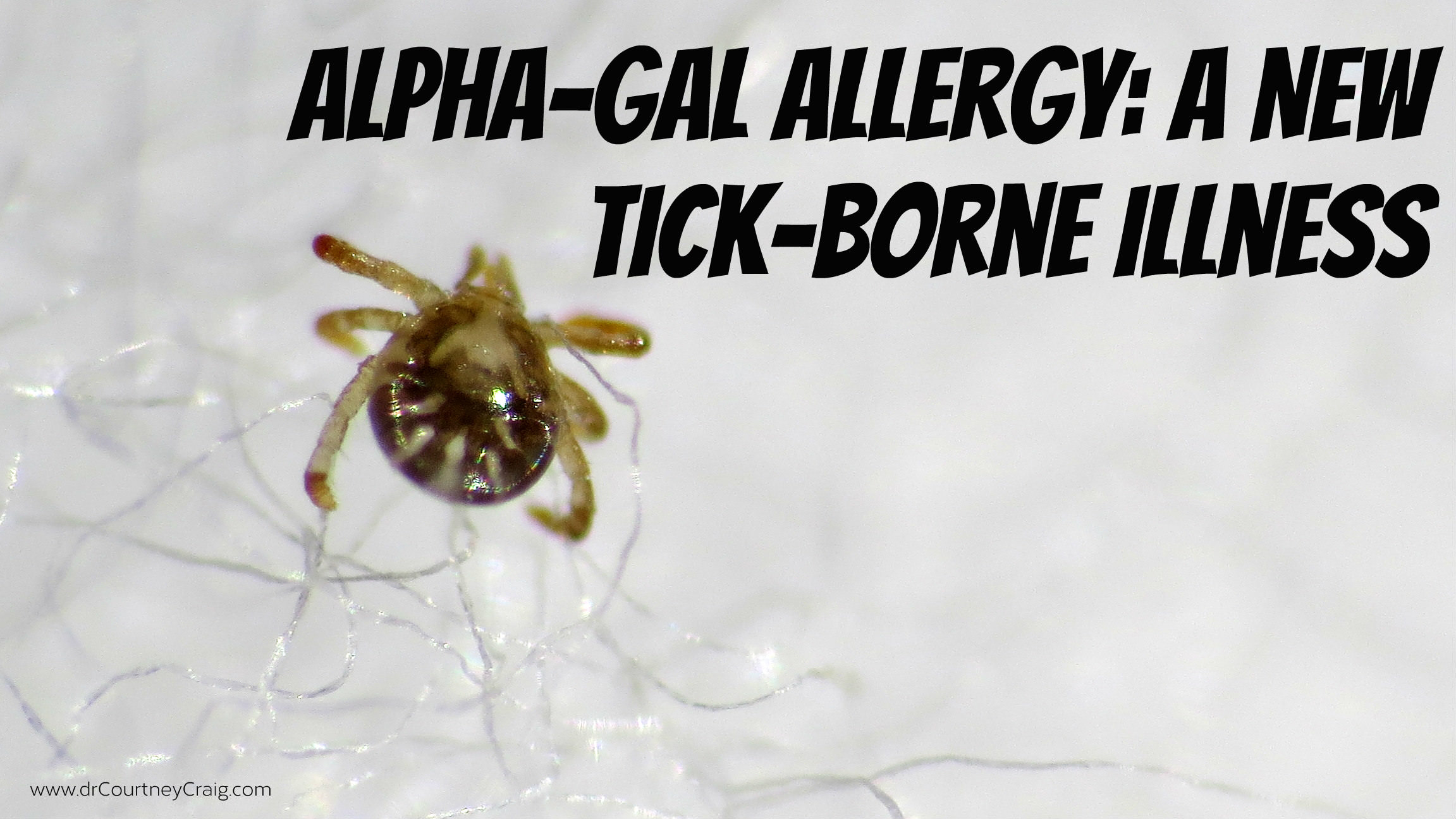 A red meat allergy following a tick bite. Learn about what alpha-gal allergy is and how it can mimic chronic fatigue syndrome or Lyme.