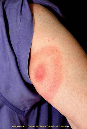 Bullseye rash from Lyme disease infection, Photo Credit CDC