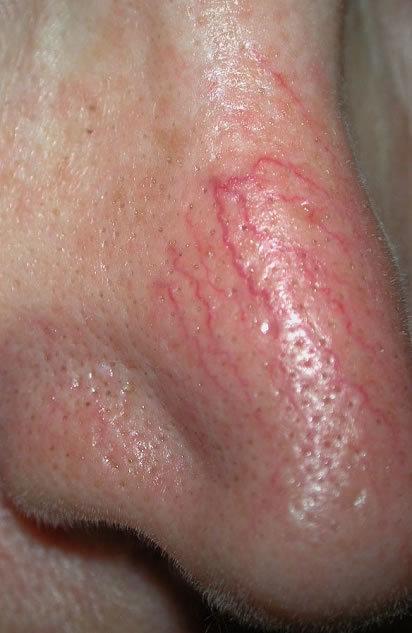 facial thread veins.jpg
