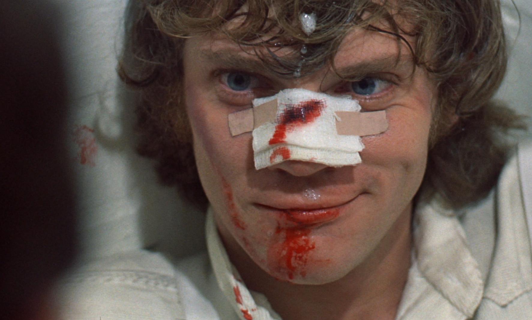 """Malcolm McDowell in """"A Clockwork Orange"""""""