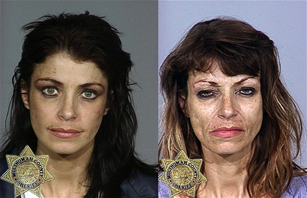 Heroin addiction - before and after. What causes people to become addicted to drugs?