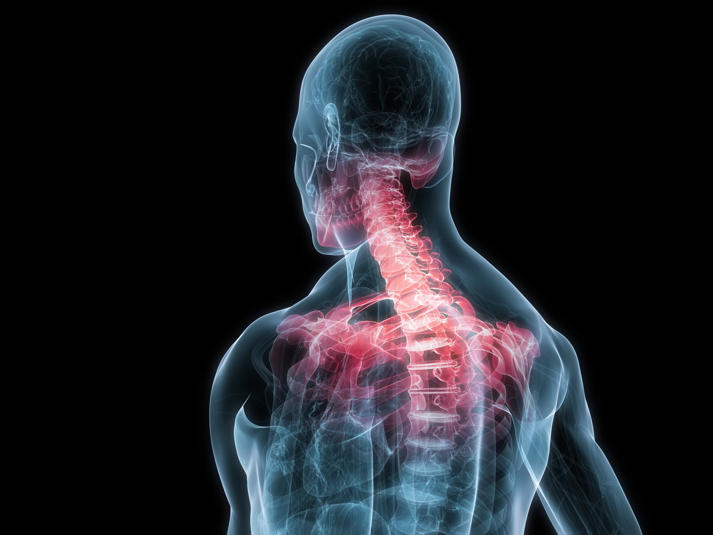 How does an Auto Accident cause Whiplash?