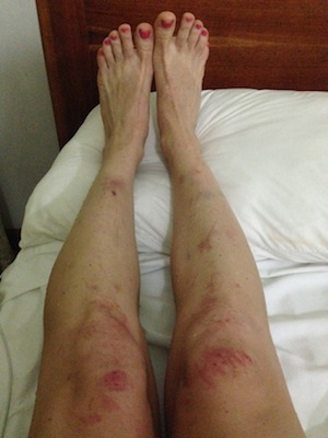 After a hike up Cerro Chato Volcano trail, and mudslide-induced panic attack, my legs were raw, bruised and battered.