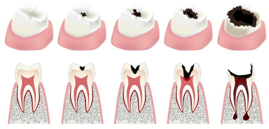 what-causes-cavities-diagram.jpg