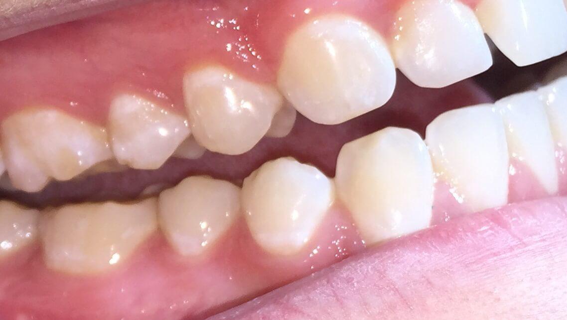 Mild Tooth Wear