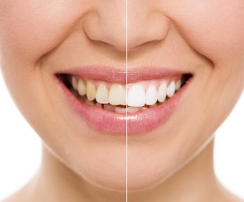 teeth-whitening-before-and-after.jpg