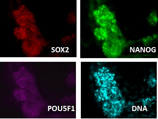 SOX2, POU5F1 and NANOG expression (ICC) sustained with cytokine supplementation in a Cat ICM outgrowth (Zhou et al. 2017).