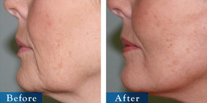 edmonton-cosmetic-surgery-facelift-8.jpg