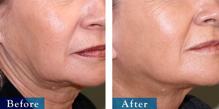 edmonton-cosmetic-surgery-facelift-10.jpg