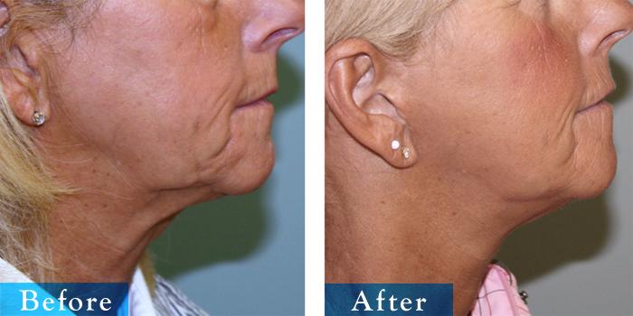 edmonton-cosmetic-surgery-facelift-12.jpg