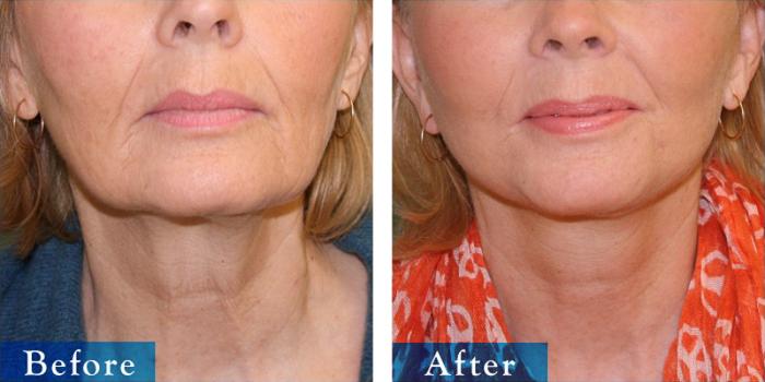 edmonton-cosmetic-surgery-facelift-1.jpg