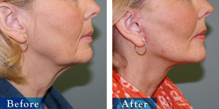 edmonton-cosmetic-surgery-facelift-2.jpg