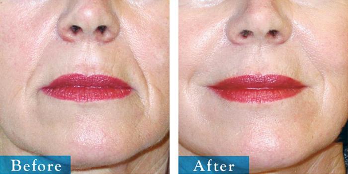 edmonton-cosmetic-surgery-facelift-4.jpg