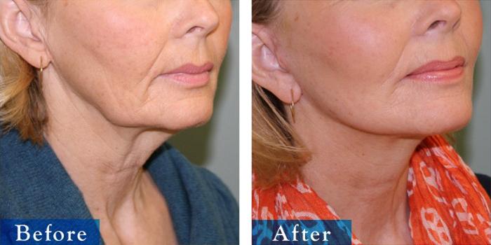edmonton-cosmetic-surgery-facelift-5.jpg