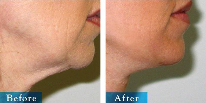 edmonton-cosmetic-surgery-facelift-7.jpg