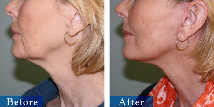 edmonton-cosmetic-surgery-facelift-6.jpg
